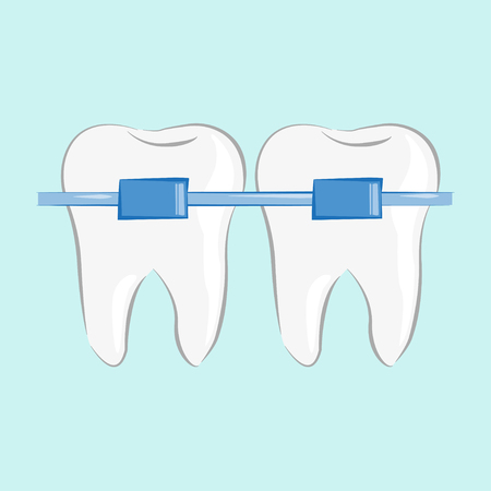 Teeth braces in flat style, vector illustration, stylish design  イラスト・ベクター素材