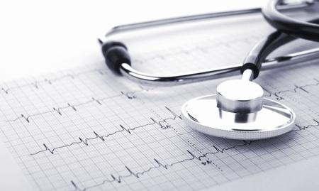 estetoscopio corazon: Estetoscopio con cardiogramm en un fondo blanco
