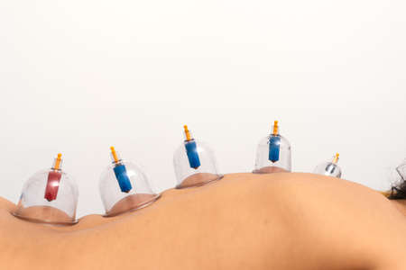 Stock photo of unrecognized woman receiving cupping treatment on her back while lying on stretcher.