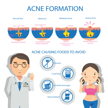 Acne formation info graphic and diagrams.Vector illustrations