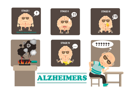 Stages of Alzheimers disease infographics vector illustration