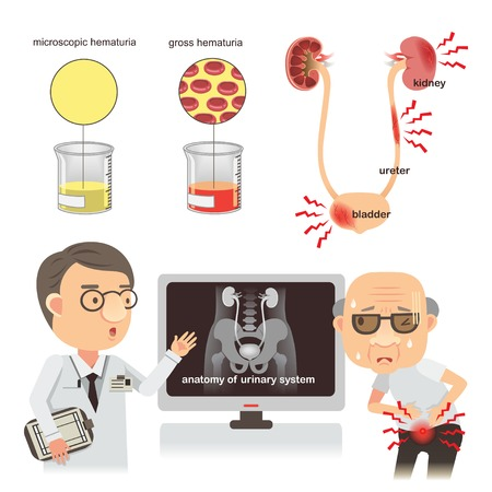 Médecins discutant d'un patient souffrant de douleurs abdominales. Urine normale et urine sanglante Inflammation du rein, des organes urinaires de l'homme, rein, vessie, isolé sur fond blanc. Illustrations vectorielles Banque d'images - 91359375