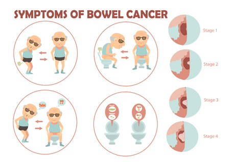 Old man suffered colon cancer and charts the growth of tumors in the colon infographic.Vector illustration Imagens - 91360724