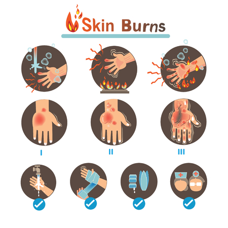 Skin burns Degree Burns and Thermal Burns Treatment,Vector illustrations Illustration