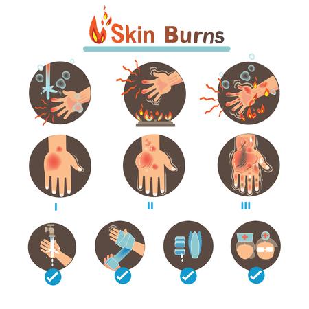 Quemaduras de la piel Grados quemaduras y tratamiento de quemaduras térmicas, ilustraciones vectoriales