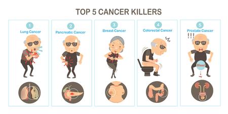 Top 5 kankermoordenaars en orgaankankers. Vectorillustraties Stockfoto - 91375917