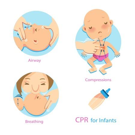 Femme effectuant la RCP. Vérification des signes de respiration. Compression d'une main. La respiration artificielle des bébés se fait par le nez et la bouche en même temps. Vecteurs