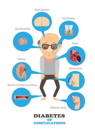 Ilustracja infographics.vector cukrzycy komplikacji Ilustracje wektorowe