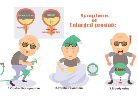 Symptoms of enlarged prostate Infographic.vector illustration