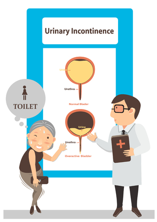 Doctors give patients see diagram urinary incontinence illustration vector.