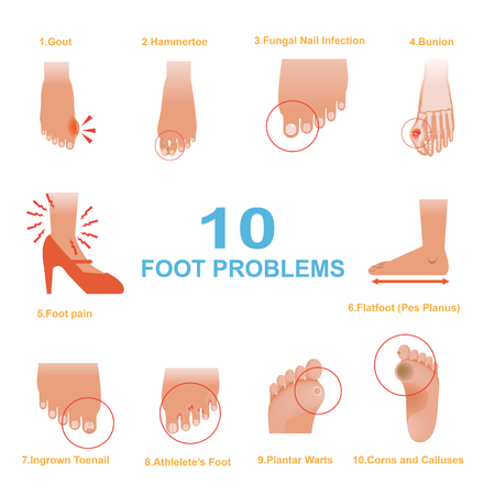 Foot Problems Common Vector