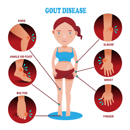 Painful and inflamed gout on her body around the Bones and joints in the circle.