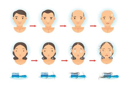 毛損失のプロセス。  イラスト・ベクター素材