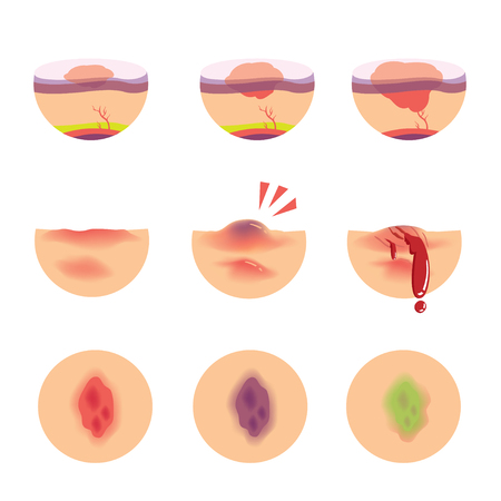 Hematomas skin stages of bruises scenarios. vector  illustration Illustration