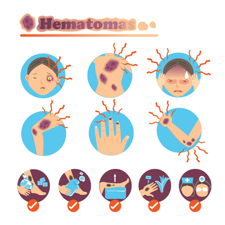 Bruises on the skin and body care.
