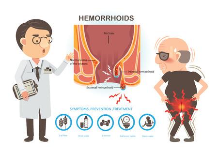Homem dor de hemorróidas e médicos para conversar com os pacientes. Diagrama da anatomia anal. hemorróidas internas e externas Ilustración de vector