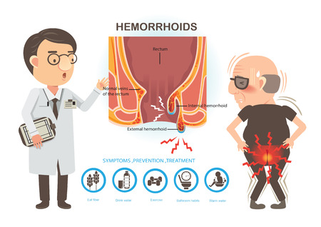 Man ache of hemorrhoids and Doctors to talk to patients. Diagram the anal anatomy. internal and external hemorrhoids  Vectores