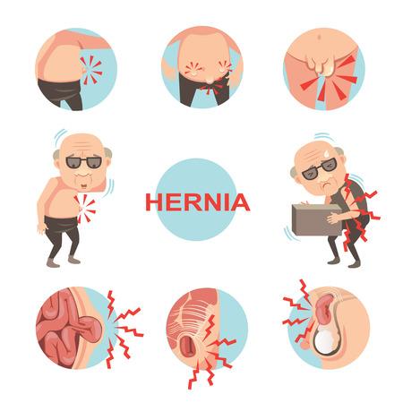 Schemat wewnętrznej przepukliny pępkowej i pachwinowej, mężczyzn z objawami i objawami przepukliny, które można zauważyć. Ilustracja wektorowa kreskówka