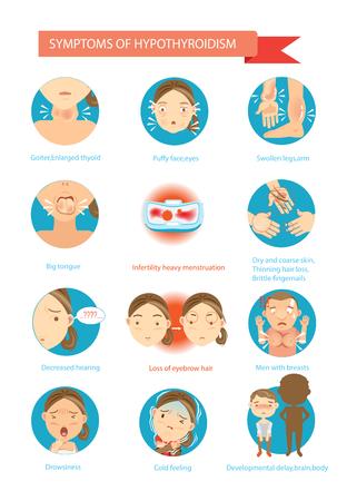 Symptoms of the disease Hypothyroidism illustrations