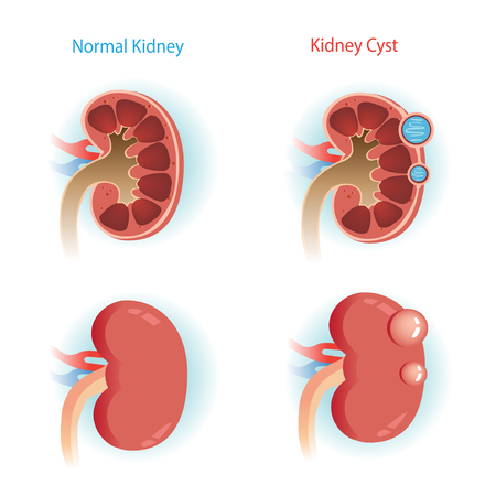 kidney Cyst disease and  Normal kidney.Vector illustrations Illustration