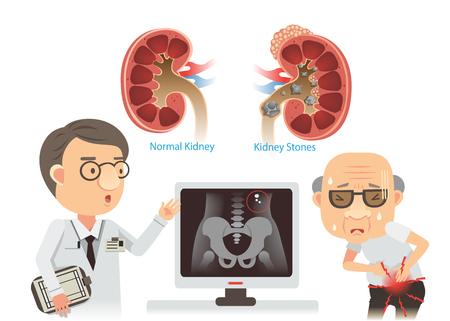 Los médicos están aconsejando los viejos cálculos renales. Él con dolor. Ilustración de dibujos animados de vector