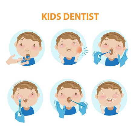 kleine jongen zijn mond wijd open voor het tandartsonderzoek van de mondholte. vectorillustraties Stock Illustratie