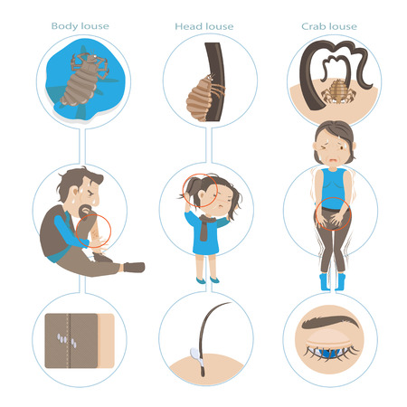 Louse in different body parts vector illustration