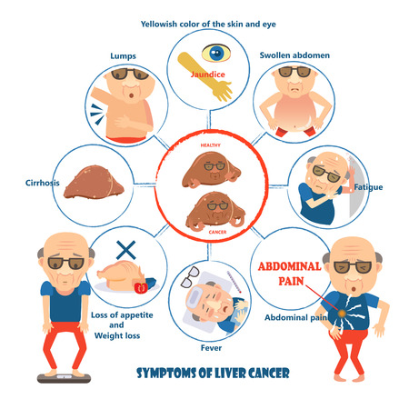 Symptoms of liver cancer in circles,info graphic vector illustration.