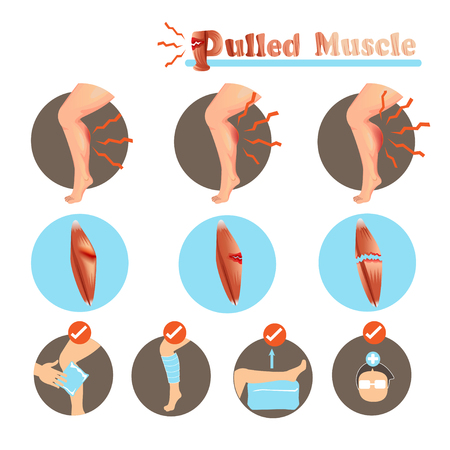 Pulled muscle. Muscle strain degree and treatment. Isolated on white background. Vector illustrations.