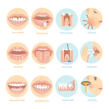 Problèmes buccaux, les douze principaux problèmes en matière de soins buccaux. Illustration vectorielle