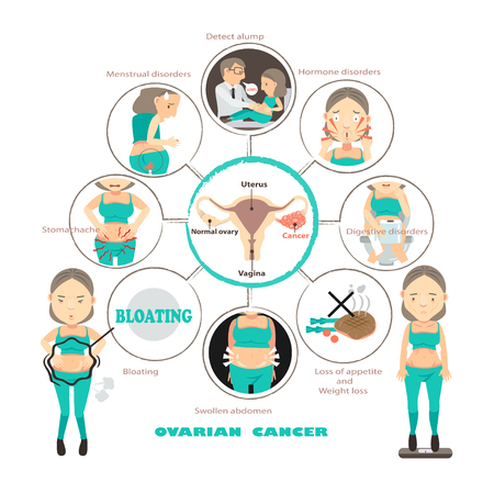Symptoms of ovarian cancer in circles,info graphic vector illustration