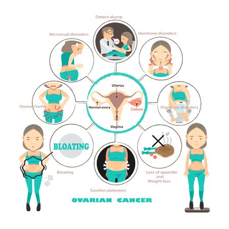 Symptome des Eierstockkrebses in den Kreisen, grafische Vektorillustration der Informationen