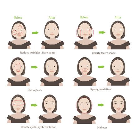 Chirurgie plastique des femmes avant et après la chirurgie esthétique. Série d'illustration de personnage de dessin animé Banque d'images - 92927974