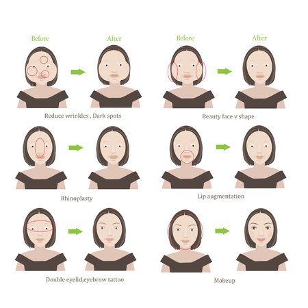 Plastic surgery women before and after cosmetic surgery. Cartoon character illustration series