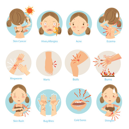 Most people are a common skin problem.Vector illustrations.