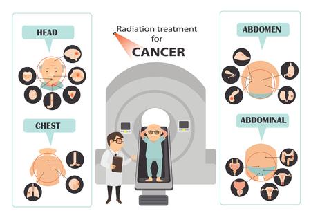 Cervical cancer symptoms infographic.Vector illustration Vector Illustration