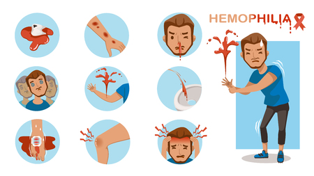 Hemophilia symptom Infographics in a circle set. Excessive bleeding. Dizziness, blurred vision, bleeding, bloody urine, swollen joint pain, extreme pain. Vector cartoon illustration isolated. 写真素材 - 114778816