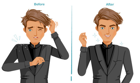 Dandruff on the shoulders. man In black suit. difference of Scalp problem and good skins of hair health. Feeling happy  and satisfied Illustration