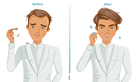 Hair Loss on the shoulders. man In white suit. difference of hair loss problem and care hair health. Feeling happy  and anxiety. Illustration for hair transplant and product