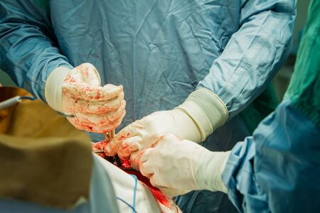 Close-up of a surgeon's hand with tongs breaking a skull bone. Archivio Fotografico - 137632338