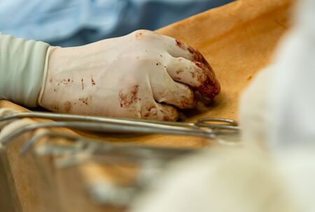 The surgeon rests his right hand in a glove with traces of blood on the table with surgical instruments. close-up of a hand.