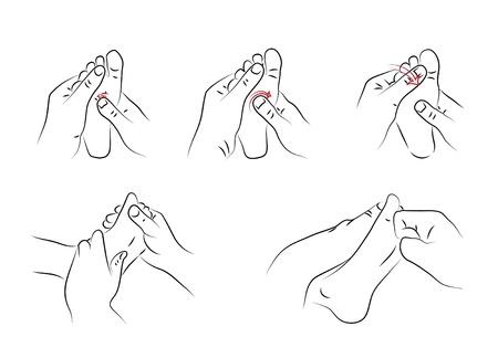 Reflexology techniques as illustration Stock Vector - 16761115