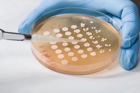levadura: Vista lateral de la inoculación de la levadura realizado por el científico, guante azul visible