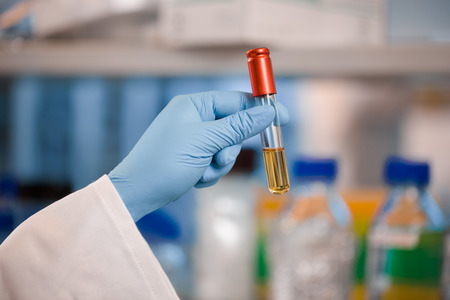 test equipment: Scientist in blue gloves holding red vial or test tube