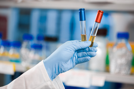 Landscape shot, choice, victory, scientist holding red and blue vials or test tubes