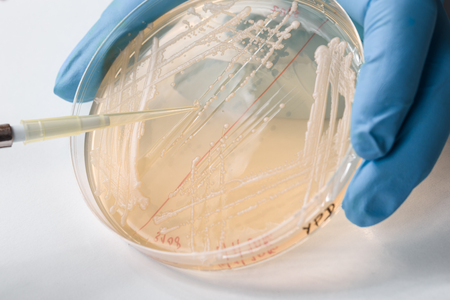 an inoculation: Detail of yeast inoculation performed by scientist, blue glove visible