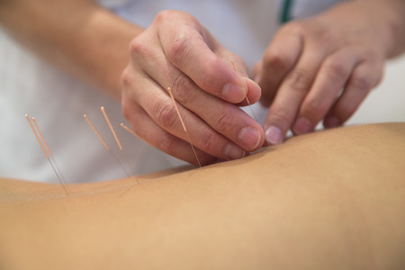 treatments: Acupuncture needles on back of a young woman