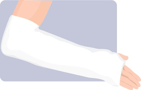 Illustration of a hand with bandages Stock Illustration - 2987348
