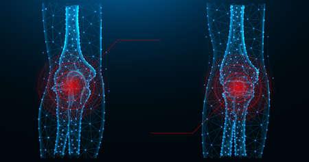 Elbow joint pain blue polygonal vector illustration. 일러스트