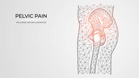Polygonal vector illustration of pain, inflammation or injury in the pelvis and hip joint side view. Medical orthopedic diseases templates Ilustração